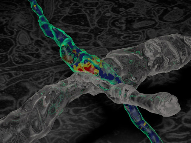 Synaptic Plasticity and Repair Group (Vincenzo De Paola) – 3D rendering of a regenerating axon (light blue) making a new connection on a dendrite (grey) in the adult brain (from Growing Again, Biomedical Picture of the Day, 28 July 2013)